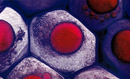 Клеточная терапия-1