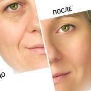 микротоки для лица
