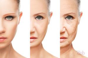 деформационный тип старения