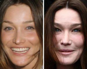 Карла Бруни до и после пластики