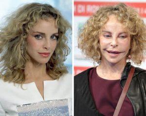 Сидни Ром до и после пластики